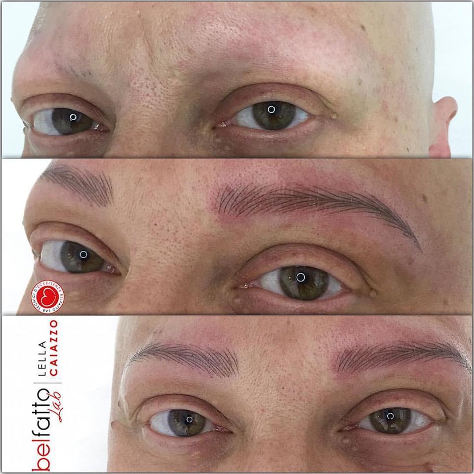 alopecia sopracciglia
