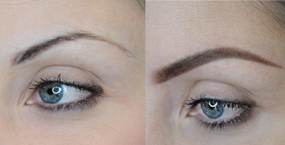 Sopracciglia - Marianna (prima dopo) occhio sinistro napoli