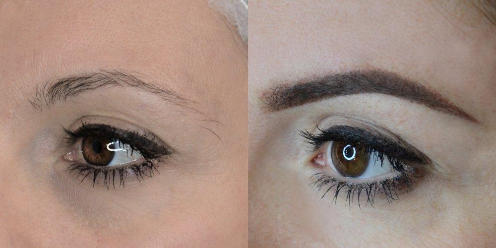 Sopracciglia - Sonia (primadopo) occhio sinistro napoli